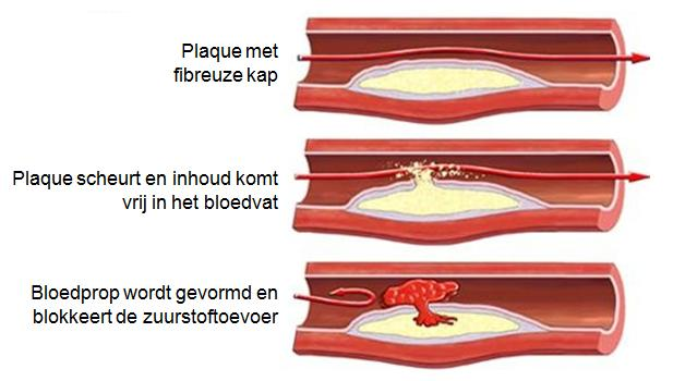Plaque ruptuur ten gevolge van aderverkalking