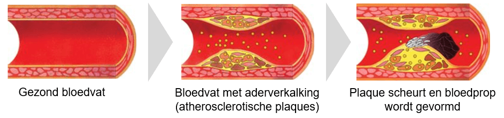 De oorzaak van coronaire hartziekten berust op slagaderverkalking.